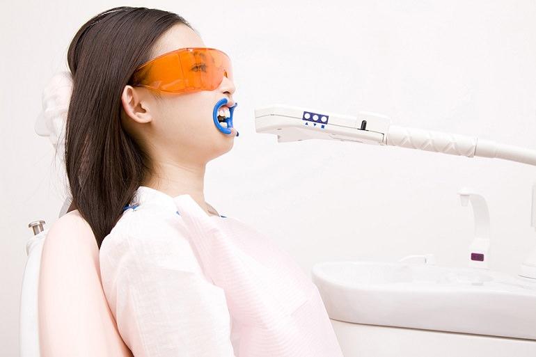 ≪歯ぐきのホワイトニング≫